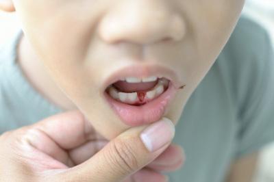 Izpadanje zob pri otroku